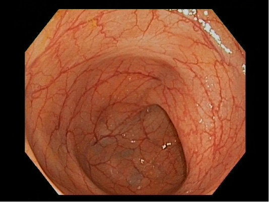 Normal: Sigmoid Colon